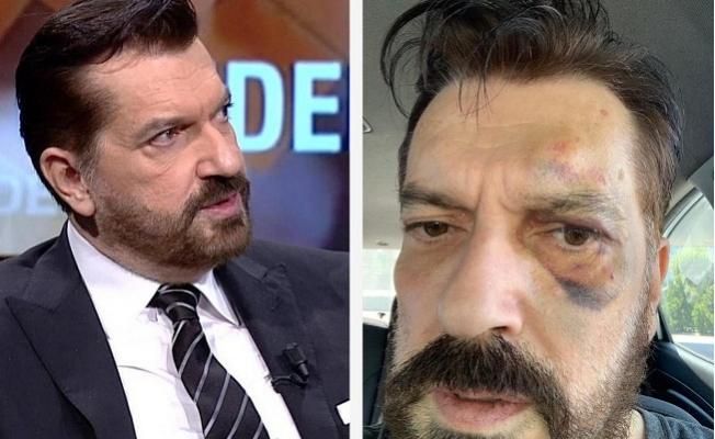 SONAR'ın Sahibi Hakan Bayrakçı'ya Saldırı