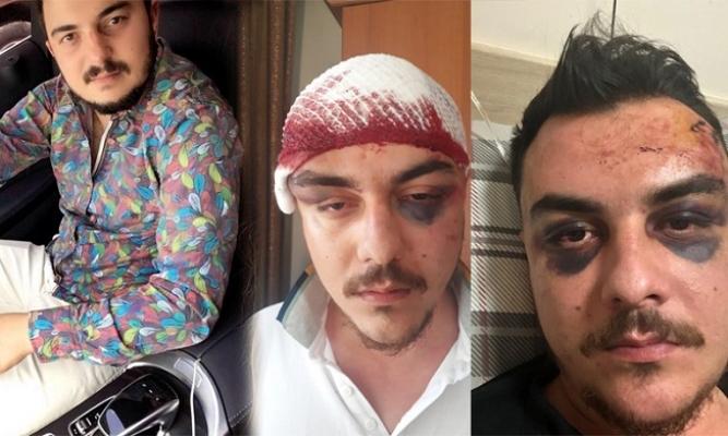 Mersin'de 4 Kişi Tarafından Dakikalarca Feci Şekilde Dövüldü, 4 Gün Komada Kaldı