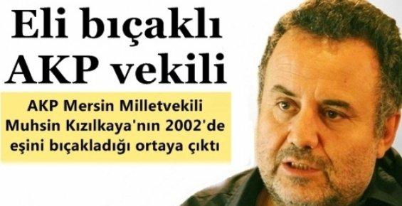 AK Parti Mersin Milletvekilinin Eşini Bıçakladığı Ortaya Çıktı