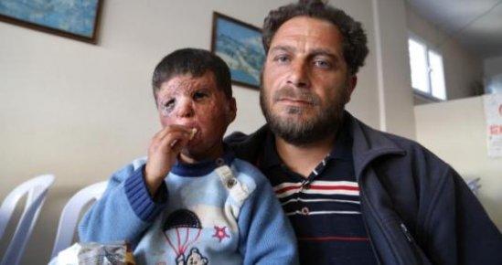 Küçük Mustafa, Savaşın İzini Yüzünden Silmek İstiyor