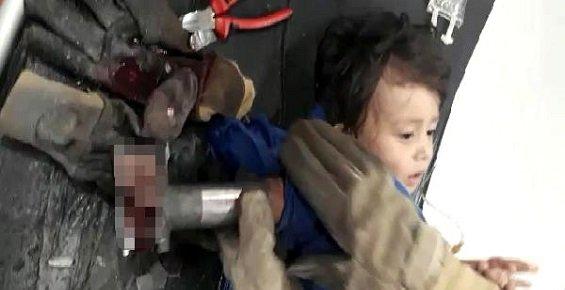 Mersin'de 2 Yaşındaki Mustafa, Elini Kıyma Makinesine Kaptırdı