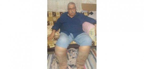 Mersin'de Bir Garip Hastalık