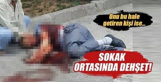 Mersin'de Bir Kişi, Eski Damadı Tarafından Bıçaklanarak Ağır Yaralandı.