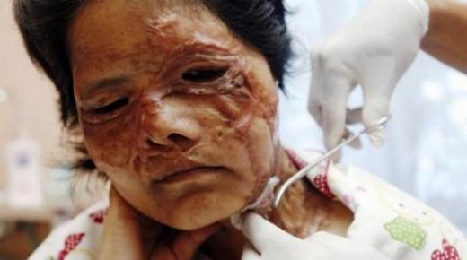Nikahsız Yaşadığı Eşine Kezzapla Saldırdı