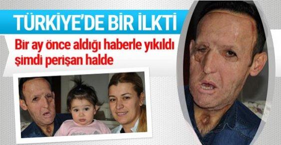 O Türkiye'de Bir İlkti İşsiz Kaldı!