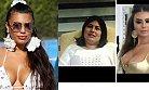 Bu Hale Gelmek İçin 17 Ameliyat Oldu, 100 bin lira Harcadı