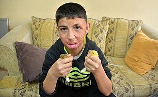 11 Yaşındaki Hakkı, Yeni Yüzüne Kavuşmayı Bekliyor