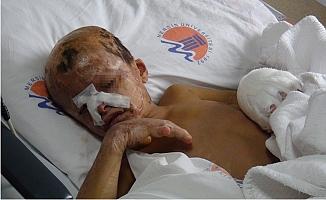 Savaşın En Acı Yüzü Suriyeli Muhammed