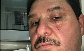 Mersin'de Ürdünlü Çocuğa Tokat Atmıştı, Mahkemede Özür Diledi