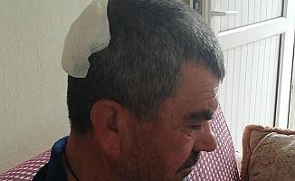 Patlamada Savrulan Taş Parçaları 6 Kişiyi Yaraladı
