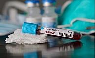 Mersin ve Adana#039;da Koronavirüse Yakalanan Hasta Sayısı Açıklandı